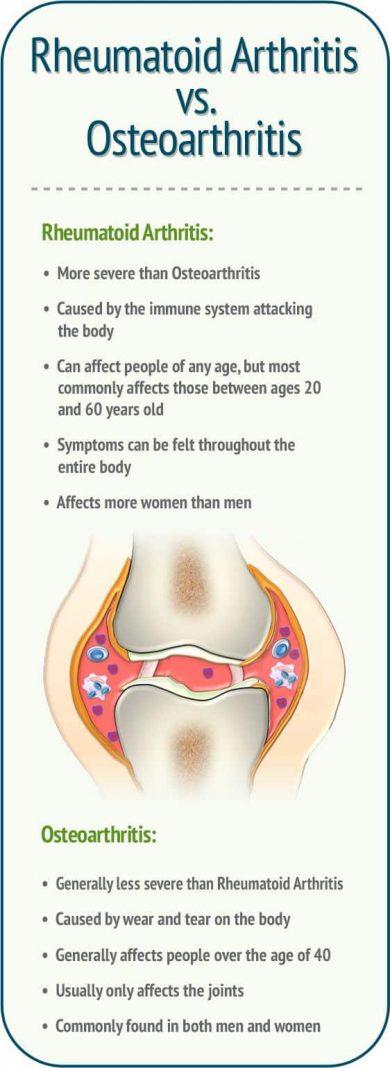 rheumatoid-arthritis-medicaltone