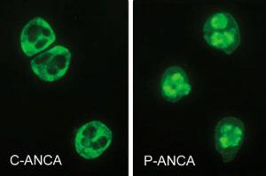 VASCULITIS>> MPO-ANCA / p-ANCA Microscopic polyangiitis Eosinophilic granulomatosis with polyangiitis Ulcerative colitis