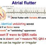 Atrial fibrillation vs Atrial Flutter