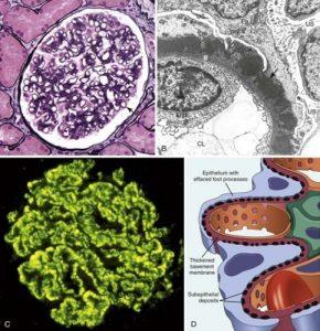 Primary membranous nephropathy>> Antiphospholipase A2 receptor 85% of membranous nephropathy