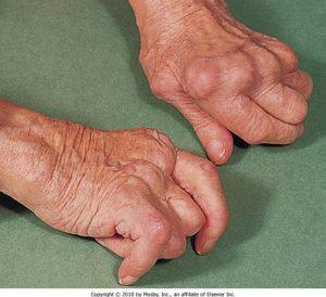 Rheumatoid arthritis>> Rheumatoid factor (IgM against IgG Fc region) Anti-CCP (more specific)