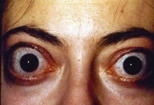 9.Graves disease>> Anti-TSH receptor (activates it)
