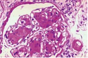 Type 1 DM>> Anti-glutamic acid decarboxylase (GAD) Anti-islet cell cytoplasmic antibodies