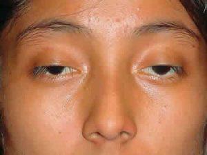 . Myasthenia gravis>>