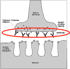 Lambert-Eaton myasthenic syndrome >