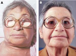 Hashimoto thyroiditis >>